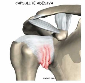 capsulite1